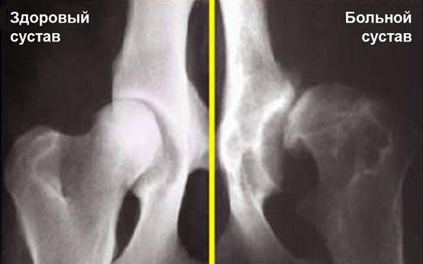 Дисплазия тазобедренного сустава сайт рентгенолога старения суставов