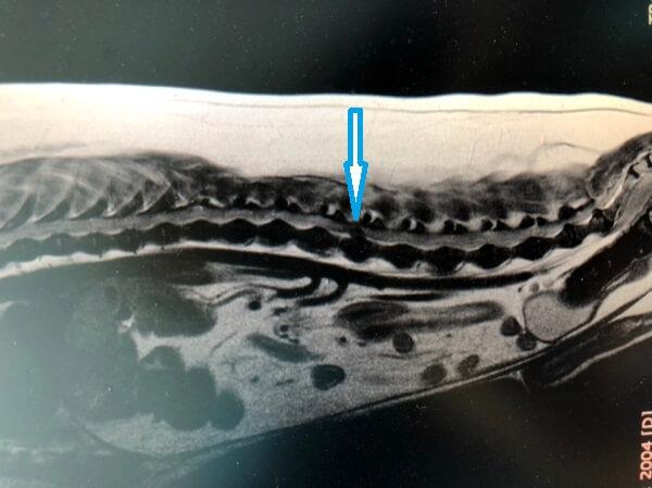 Грыжа межпозвонкового диска на МРТ. Рис. 2